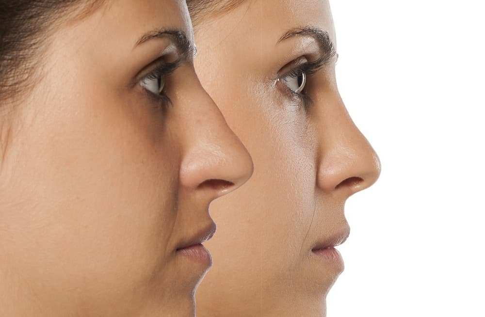 cosmetic nose job in houston texas