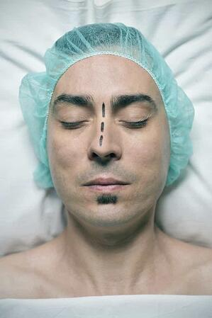 deviated nasal septum surgery in houston texas