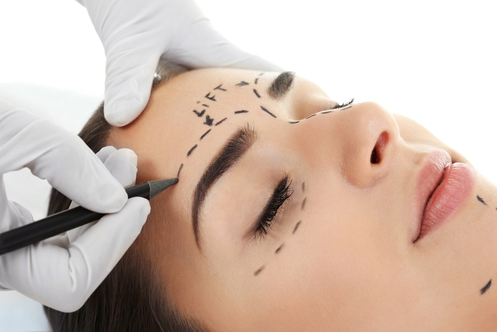 Eyebrow Lift: Botox vs Surgery