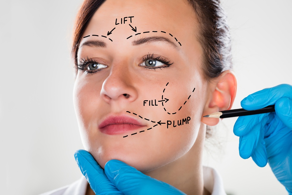 facelift surgery in houston texas