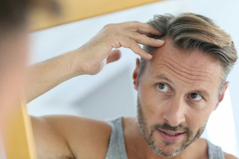 hair loss neograft procedure in houston texas