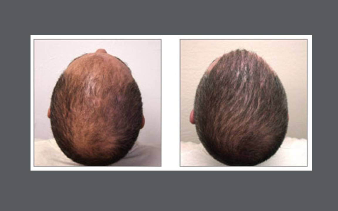 Houston Hair Restoration: The NeoGraft Procedure