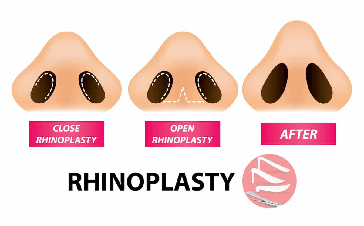 rhinoplasty in houston texas open vs closed surgical approach nose job