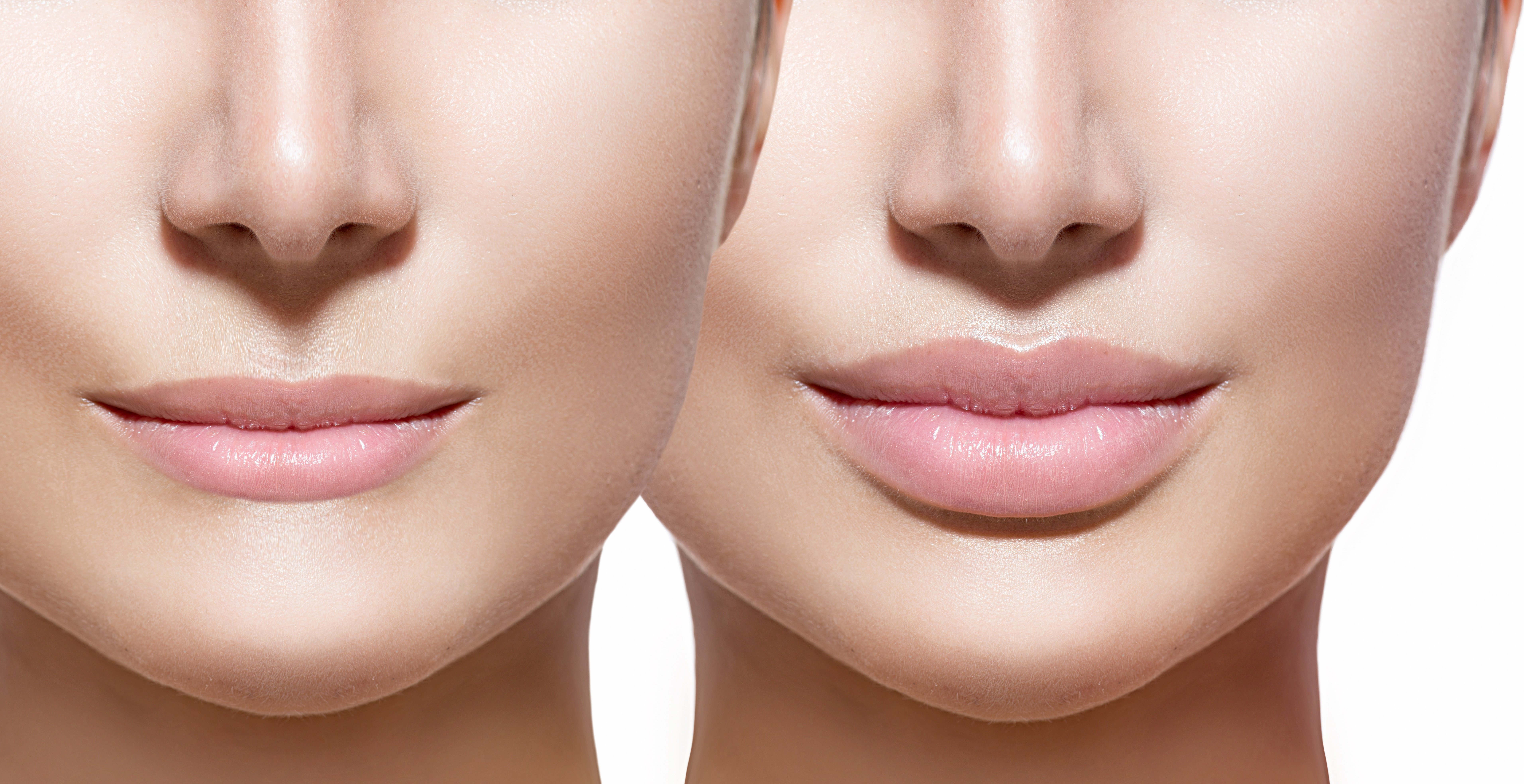 Before-and-After-Lip-Fillers