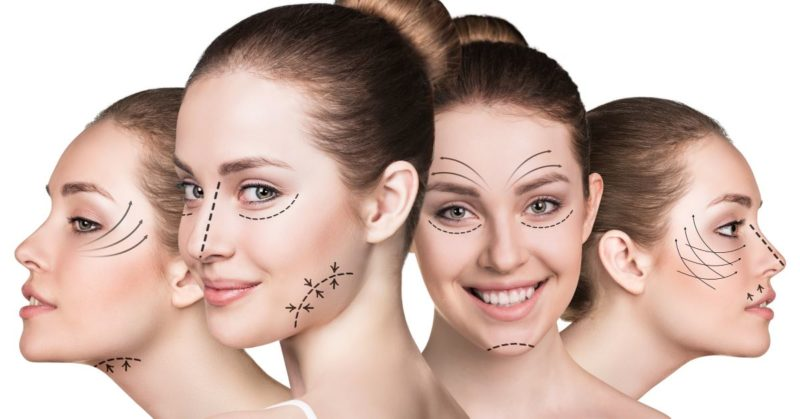 Facelift-Procedures-800x419