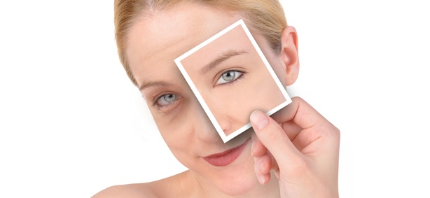 aging-skin-botox-doctors-houston