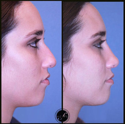 Nose Reconstruction – Rhinoplasty