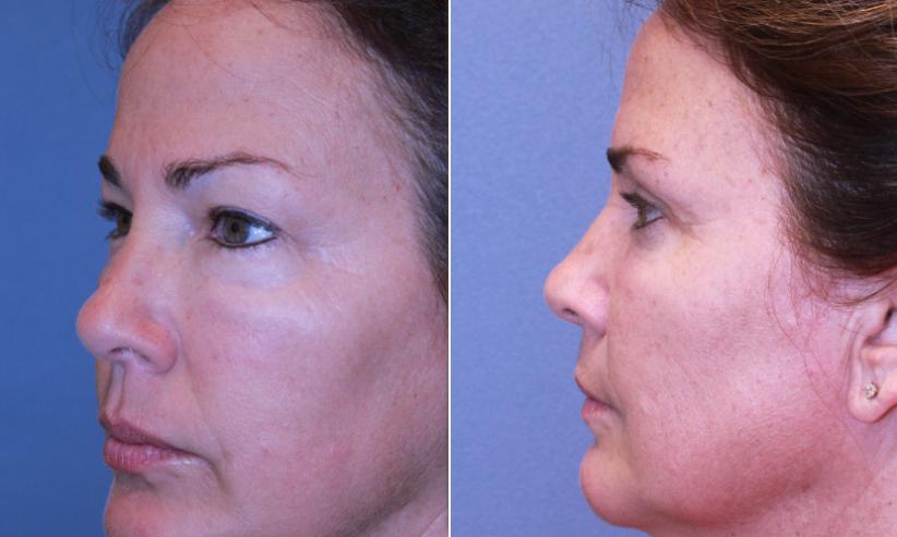 Eyelid Surgery - Blepharoplasty | Dr  Bradford S  Patt