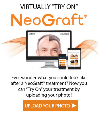 Top Reasons Why NeoGraft